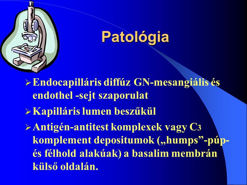 Aetiológia  Béta-haemolíticus, Streptococcus-A (gyakran 12-s típus) fertőzést követően kialakuló immunkomplex-nephritis= acut poststreptococcalis GN  Ritkán egyéb infektív ágensek is kiválthatják Acut postinfectiós glomerulonephritis
