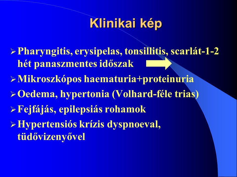 """Patológia  Endocapilláris diffúz GN-mesangiális és endothel -sejt szaporulat  Kapilláris lumen beszűkül  Antigén-antitest komplexek vagy C 3 komplement depositumok (""""humps -púp- és félhold alakúak) a basalim membrán külső oldalán."""