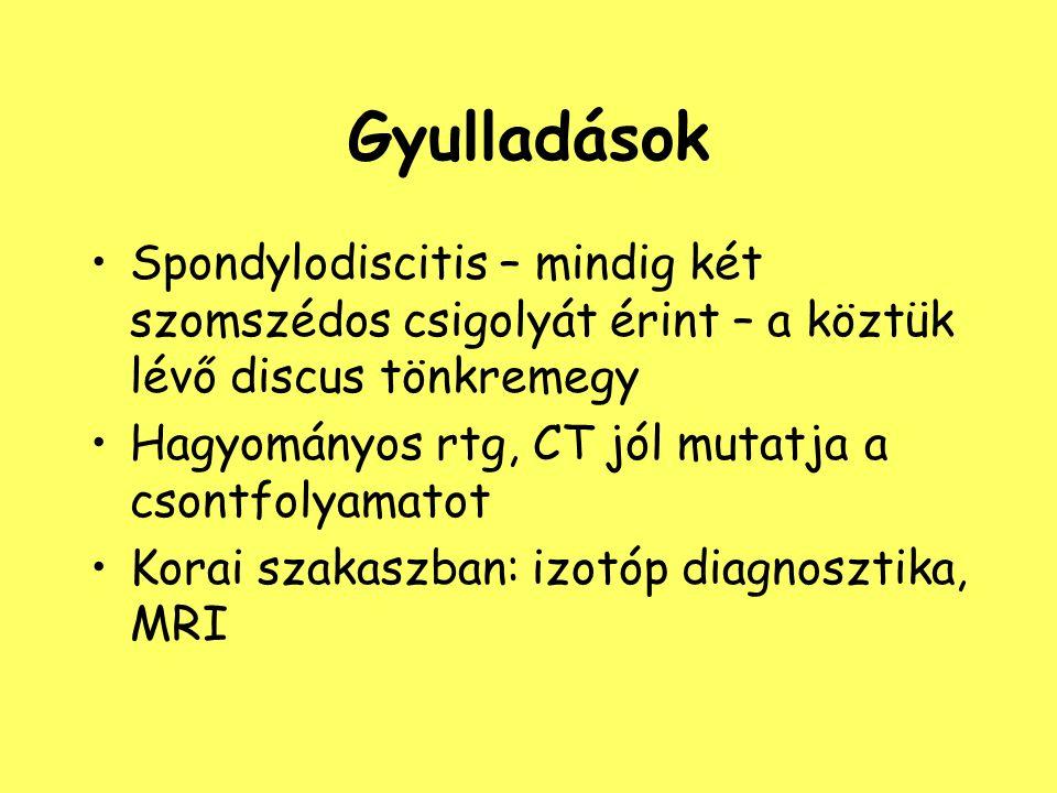 Gyulladások Spondylodiscitis – mindig két szomszédos csigolyát érint – a köztük lévő discus tönkremegy Hagyományos rtg, CT jól mutatja a csontfolyamat