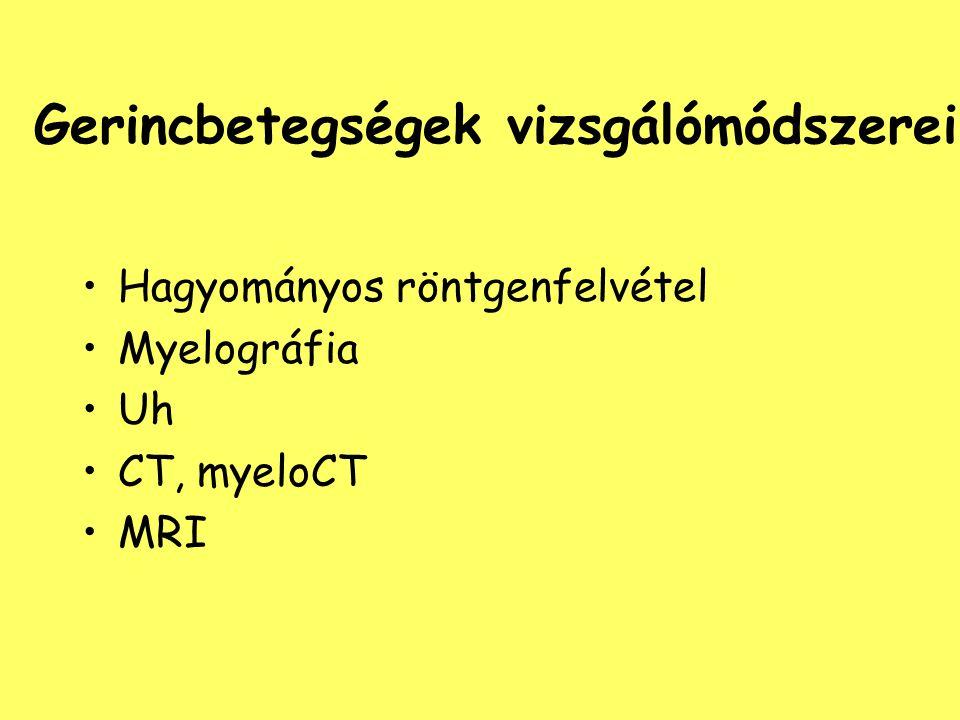 Gerincbetegségek vizsgálómódszerei Hagyományos röntgenfelvétel Myelográfia Uh CT, myeloCT MRI