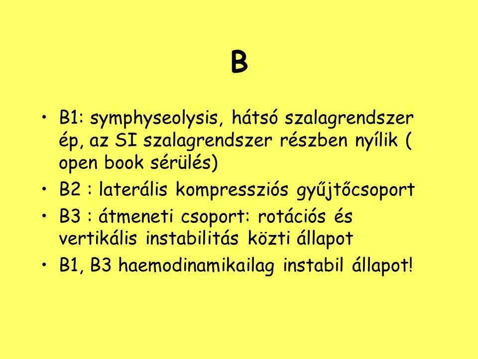B B1: symphyseolysis, hátsó szalagrendszer ép, az SI szalagrendszer részben nyílik ( open book sérülés) B2 : laterális kompressziós gyűjtőcsoport B3 :