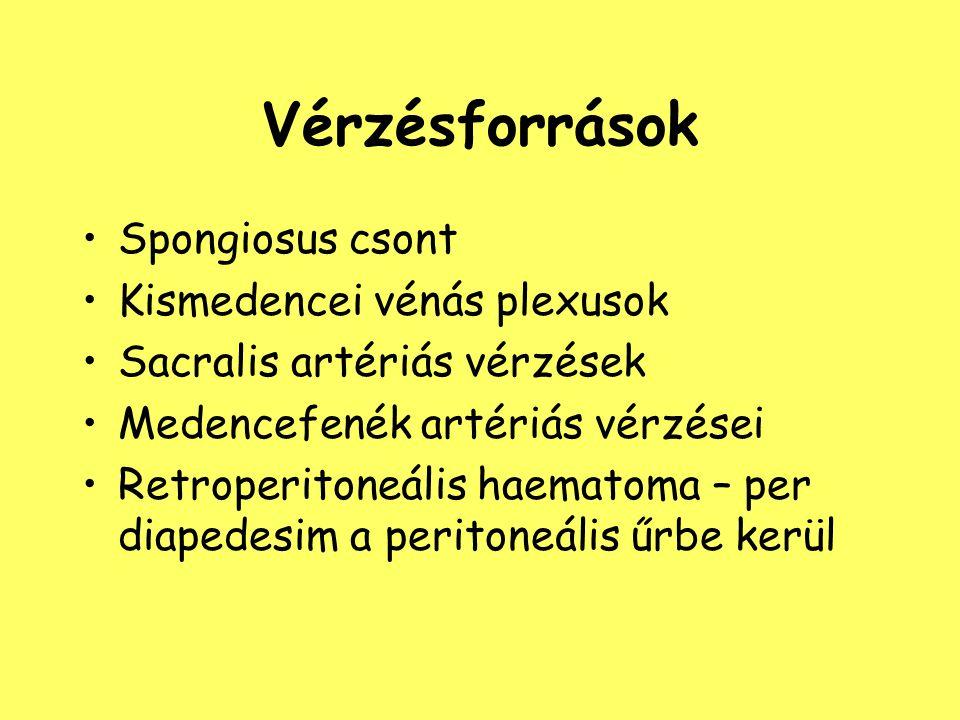 Vérzésforrások Spongiosus csont Kismedencei vénás plexusok Sacralis artériás vérzések Medencefenék artériás vérzései Retroperitoneális haematoma – per