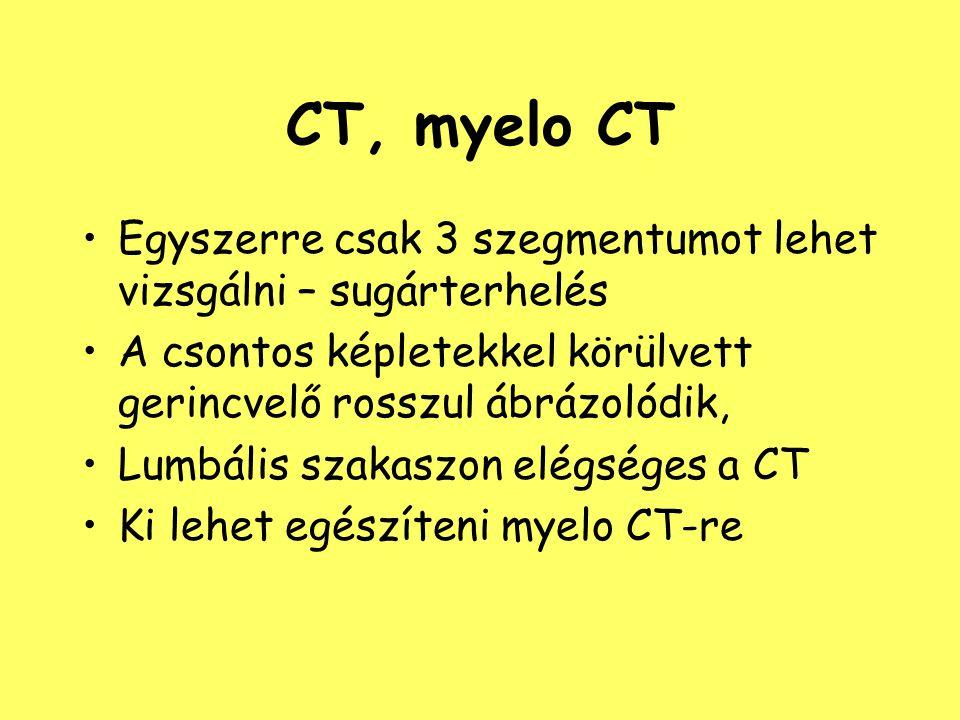 CT, myelo CT Egyszerre csak 3 szegmentumot lehet vizsgálni – sugárterhelés A csontos képletekkel körülvett gerincvelő rosszul ábrázolódik, Lumbális sz