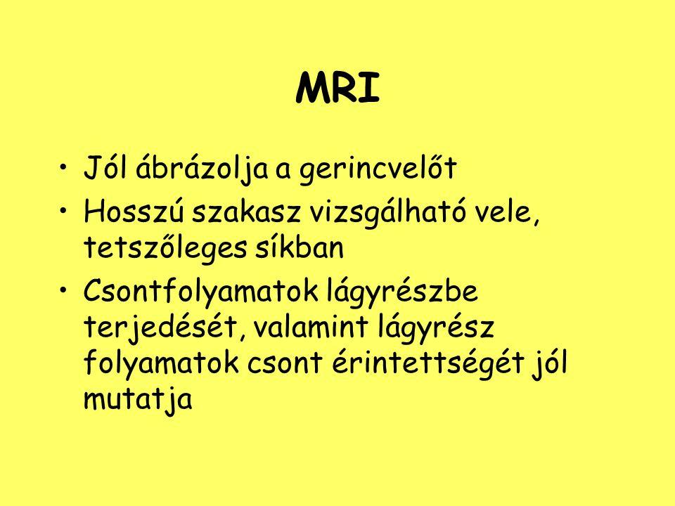 MRI Jól ábrázolja a gerincvelőt Hosszú szakasz vizsgálható vele, tetszőleges síkban Csontfolyamatok lágyrészbe terjedését, valamint lágyrész folyamato