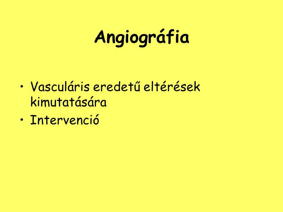 Angiográfia Vasculáris eredetű eltérések kimutatására Intervenció