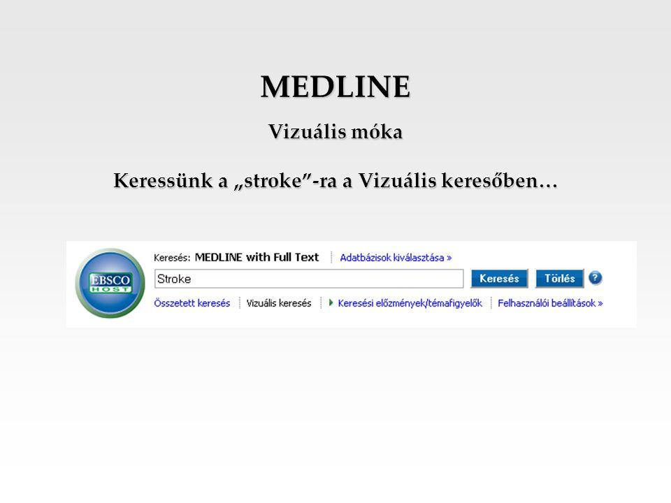"""MEDLINE Vizuális móka Keressünk a """"stroke""""-ra a Vizuális keresőben…"""