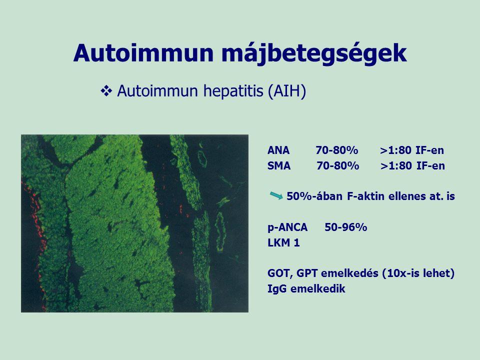 Autoimmun májbetegségek   Autoimmun hepatitis (AIH) ANA 70-80% >1:80 IF-en SMA 70-80% >1:80 IF-en 50%-ában F-aktin ellenes at. is p-ANCA 50-96% LKM