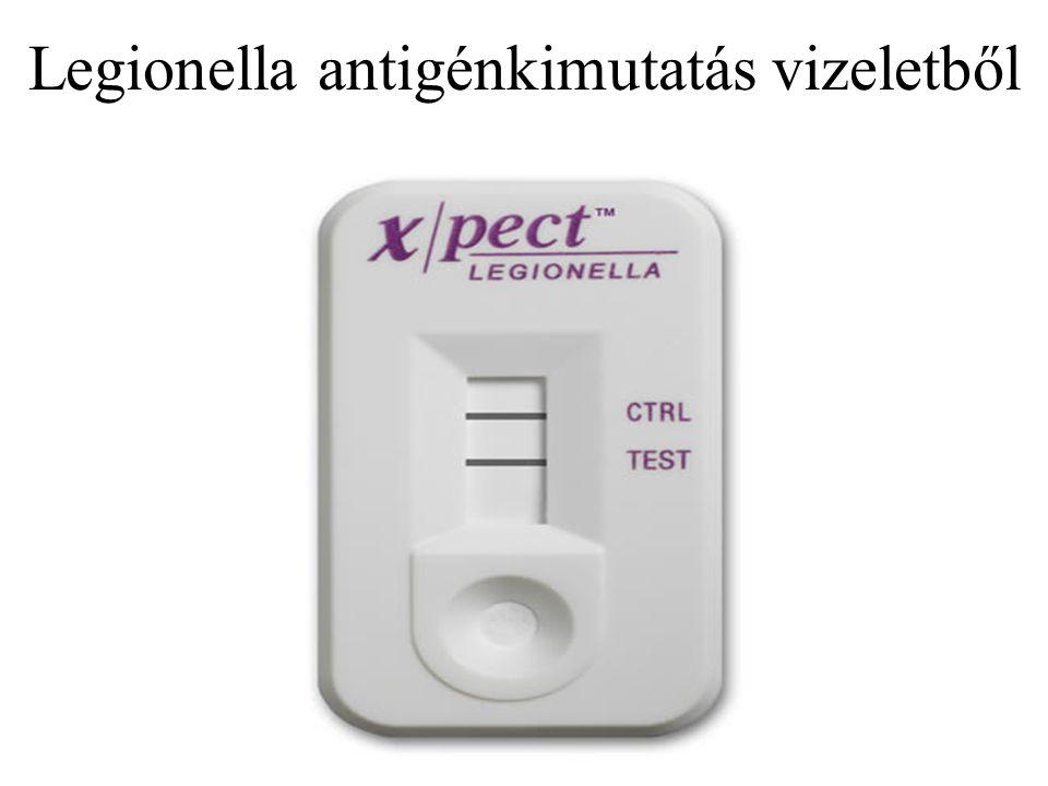 Legionella antigénkimutatás vizeletből