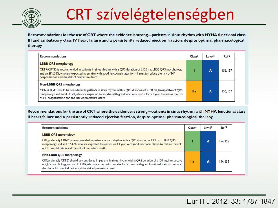 CRT szívelégtelenségben Eur H J 2012; 33: 1787-1847