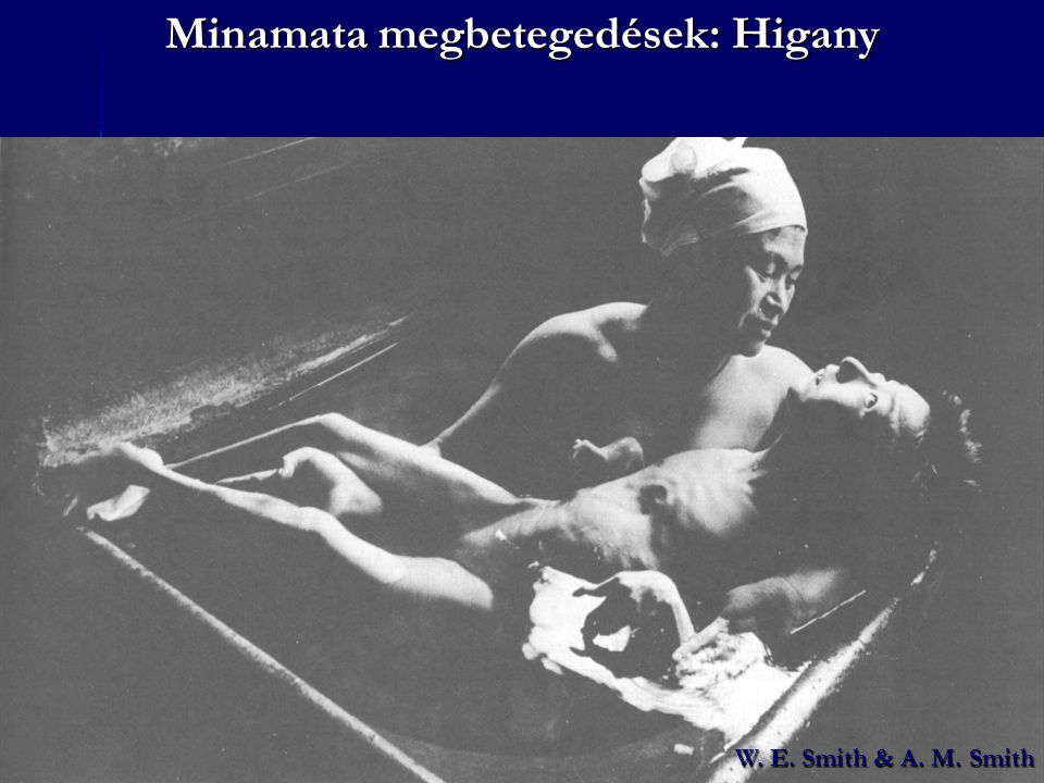 W. E. Smith & A. M. Smith Minamata megbetegedések: Higany