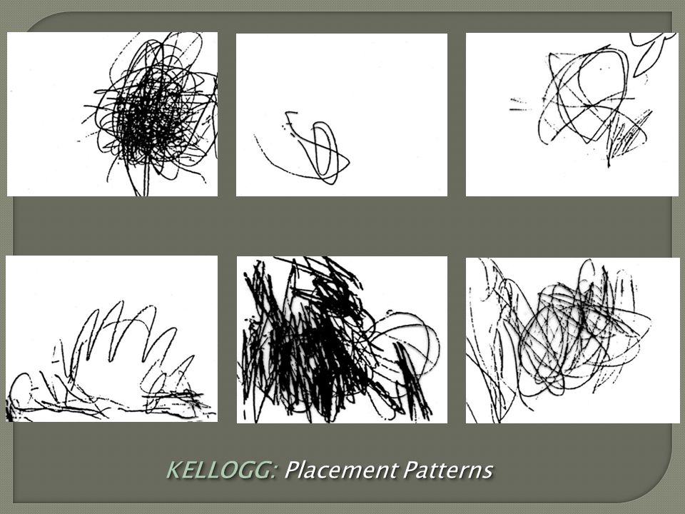 KELLOGG: Placement Patterns