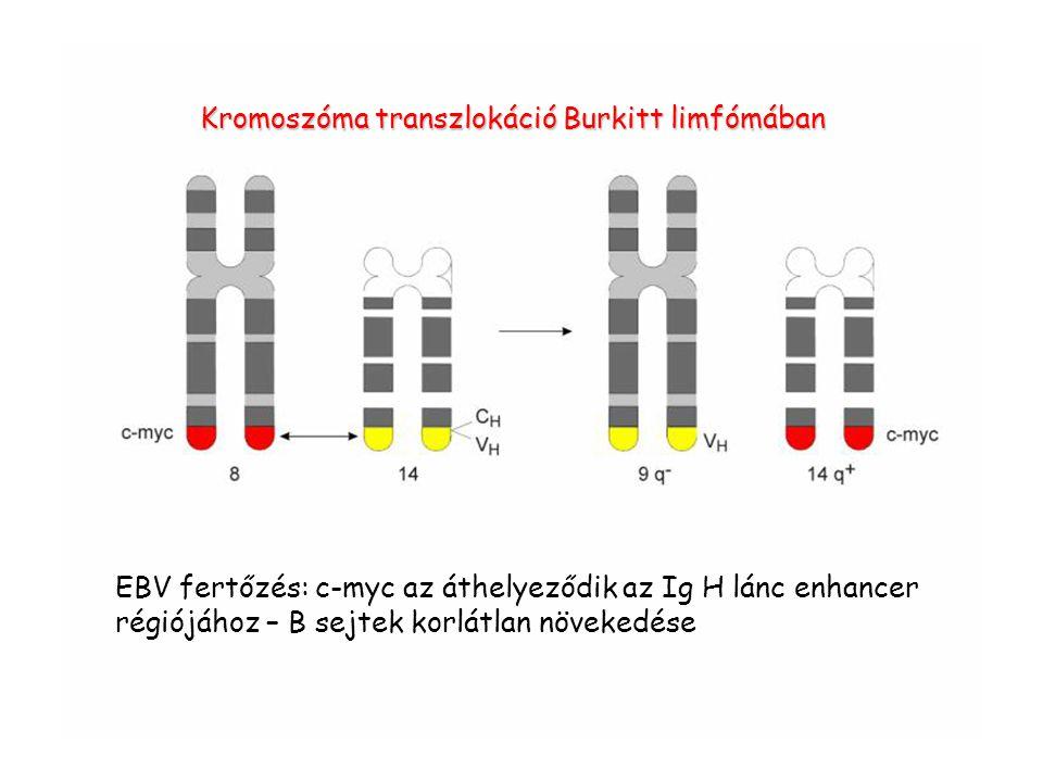 Kromoszóma transzlokáció Burkitt limfómában EBV fertőzés: c-myc az áthelyeződik az Ig H lánc enhancer régiójához – B sejtek korlátlan növekedése