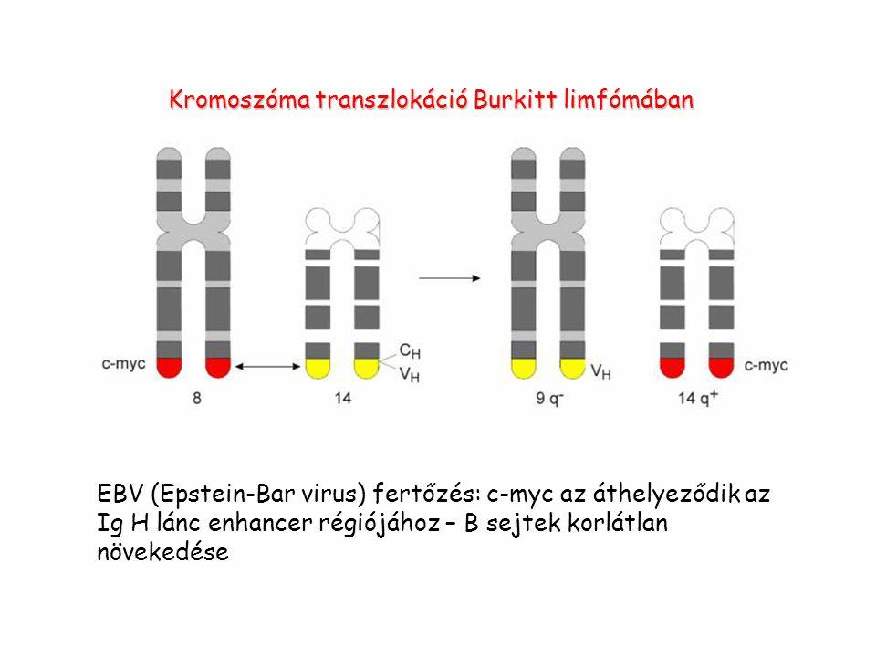 Kromoszóma transzlokáció Burkitt limfómában EBV (Epstein-Bar virus) fertőzés: c-myc az áthelyeződik az Ig H lánc enhancer régiójához – B sejtek korlát