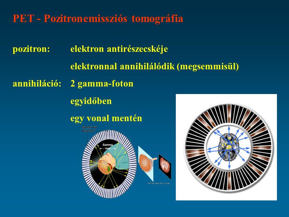 PET - Pozitronemissziós tomográfia pozitron: elektron antirészecskéje elektronnal annihilálódik (megsemmisül) annihiláció:2 gamma-foton egyidőben egy
