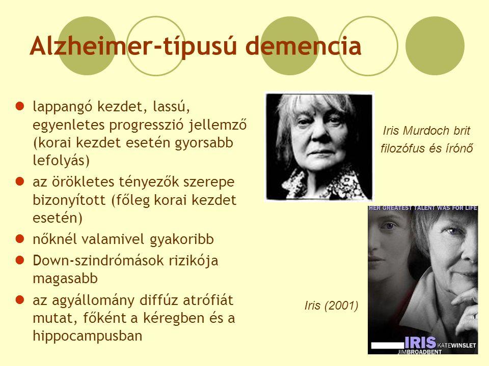 Alzheimer-típusú demencia lappangó kezdet, lassú, egyenletes progresszió jellemző (korai kezdet esetén gyorsabb lefolyás) az örökletes tényezők szerep