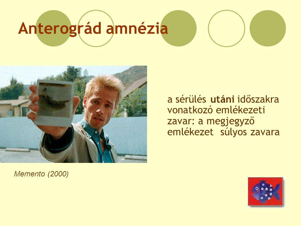 Anterográd amnézia Memento (2000) a sérülés utáni időszakra vonatkozó emlékezeti zavar: a megjegyző emlékezet súlyos zavara