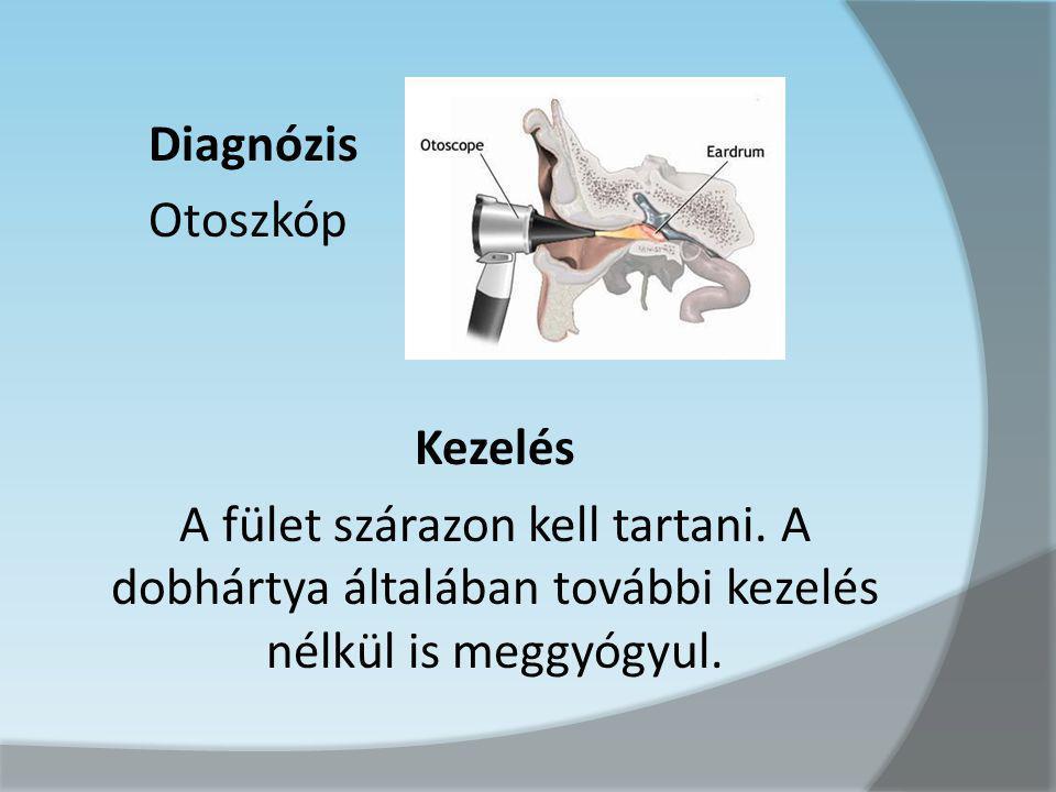 Diagnózis Otoszkóp Kezelés A fület szárazon kell tartani. A dobhártya általában további kezelés nélkül is meggyógyul.
