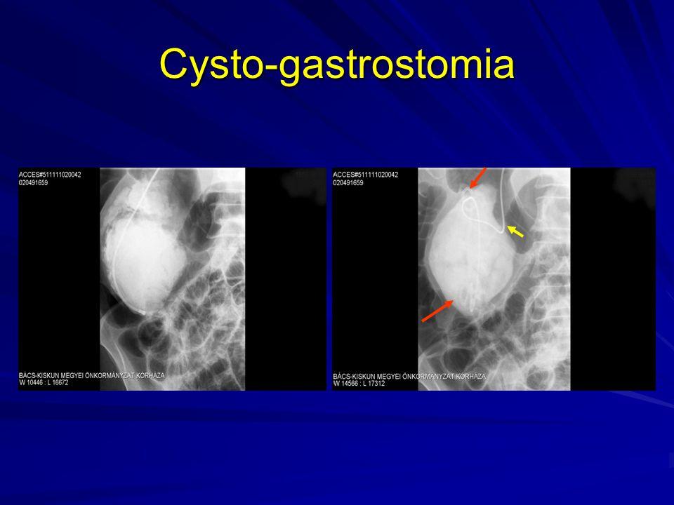 Cysto-gastrostomia