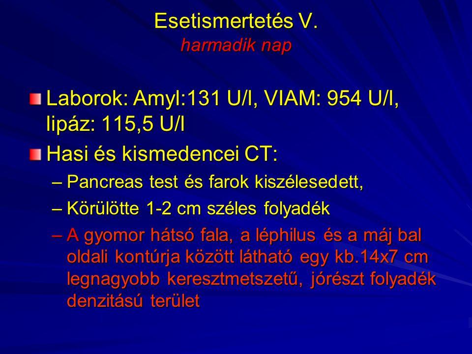 Esetismertetés V. harmadik nap Laborok: Amyl:131 U/l, VIAM: 954 U/l, lipáz: 115,5 U/l Hasi és kismedencei CT: –Pancreas test és farok kiszélesedett, –
