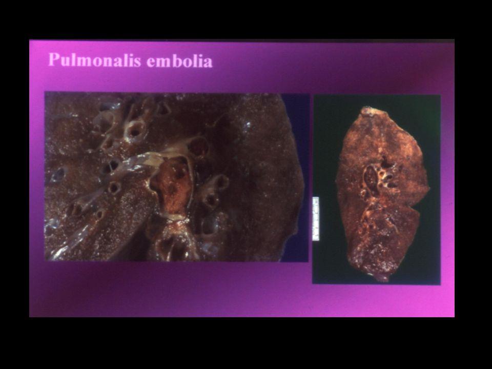 Thrombophilia szűrés orális kontraceptív szert szedőkben Általános, mindenkire kiterjedő szűrés elképzelhetetlen (nagyon drága, sehol nem végzik) VTE az anamnesisben – kontraceptív szerek használata kontraindikált, kivéve, ha antikoaguláns kezelést is alkalmazunk Családi anamnesis pozitív – szűrés!!.