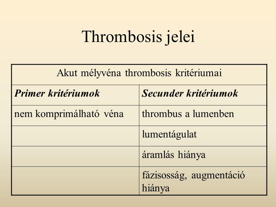 Thrombosis jelei Akut mélyvéna thrombosis kritériumai Primer kritériumokSecunder kritériumok nem komprimálható vénathrombus a lumenben lumentágulat ár