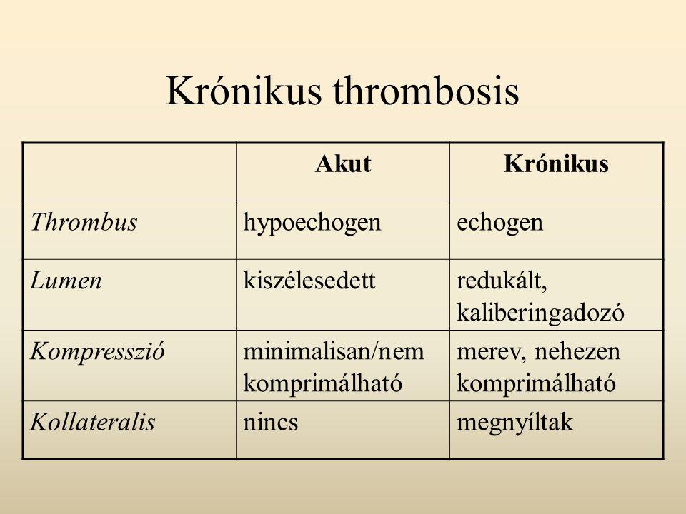 Krónikus thrombosis AkutKrónikus Thrombushypoechogenechogen Lumenkiszélesedettredukált, kaliberingadozó Kompresszióminimalisan/nem komprimálható merev