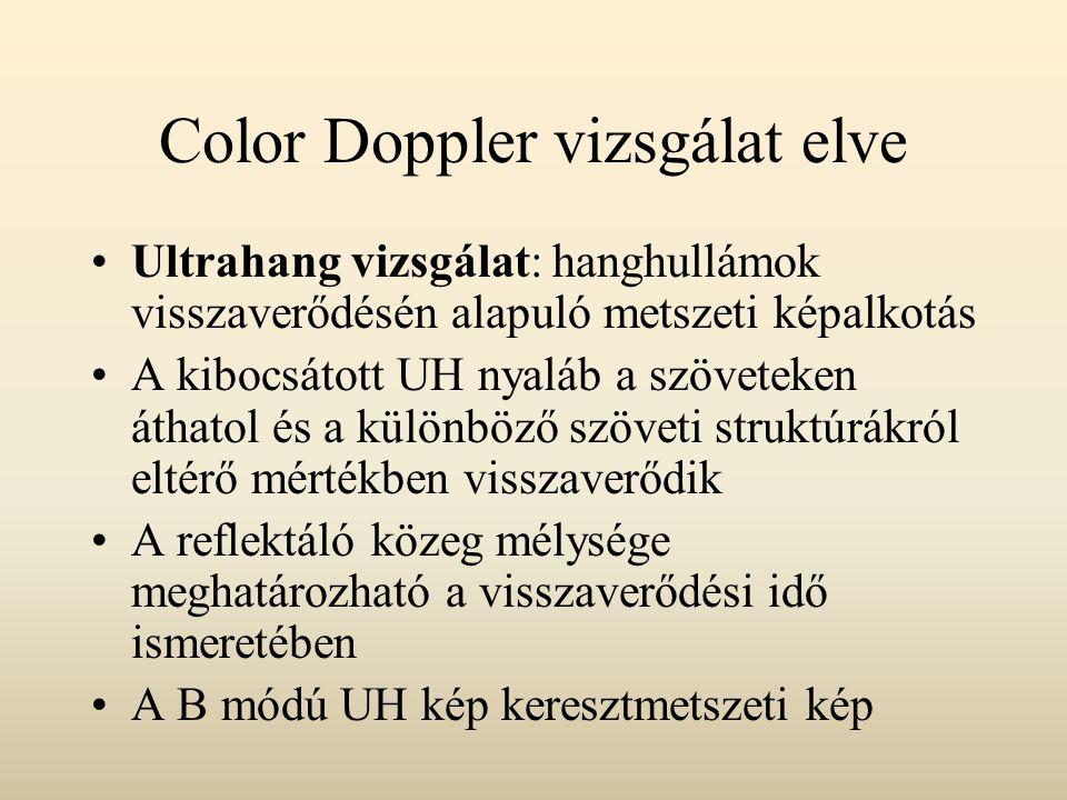 Color Doppler vizsgálat elve Doppler-elv: a mozgó felületről visszavert ultrahang frekvenciája megváltozik – közeledő határfelület esetén nő, távolodó reflektor esetén alacsonyabb lesz A frekvenciaváltozás, valamint az UH nyaláb és az értengely által bezárt szög ismeretében meghatározható az áramlási sebesség