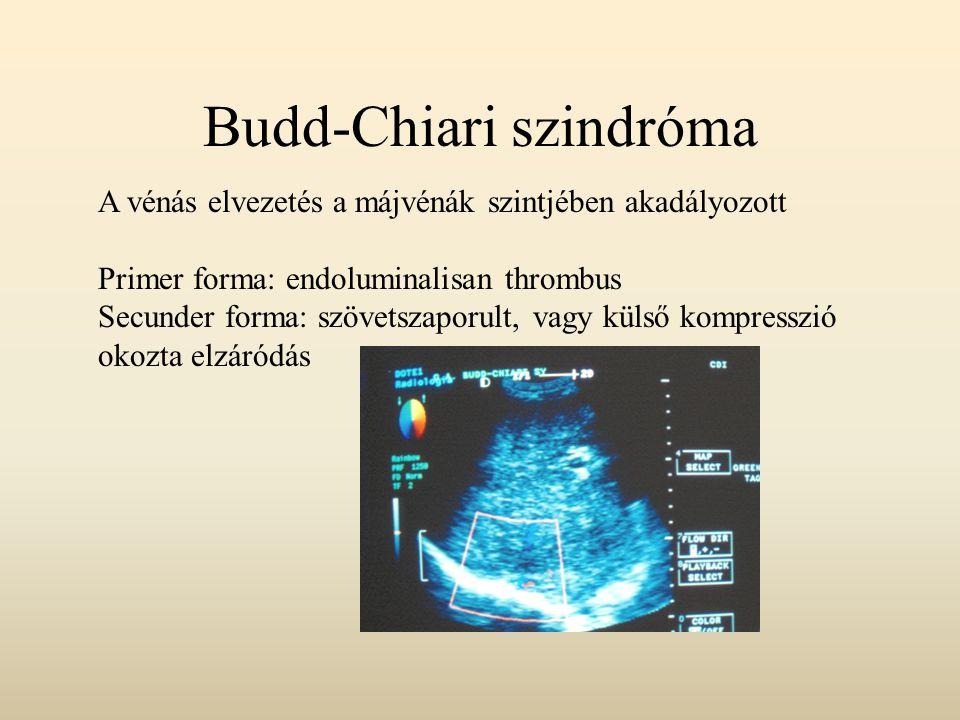 Budd-Chiari szindróma A vénás elvezetés a májvénák szintjében akadályozott Primer forma: endoluminalisan thrombus Secunder forma: szövetszaporult, vag