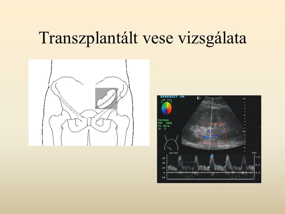 Transzplantált vese vizsgálata