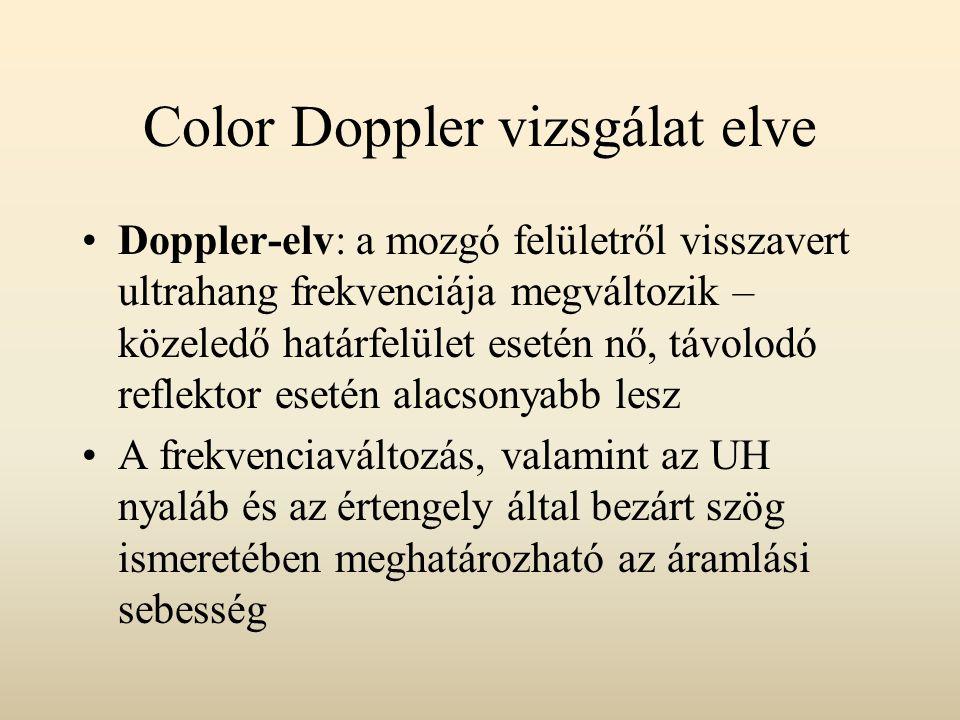 Color Doppler vizsgálat elve Color-mód: az áramlás iránya, sebessége, a Doppler-echo amplitúdója színekké kódolva visszaírásra kerül a monokromatikus B- képbe Doppler-göbe: a vörösvértestek mozgásából adódó, mérhető frekvenciaváltozás megjelenítése az idő függvényében