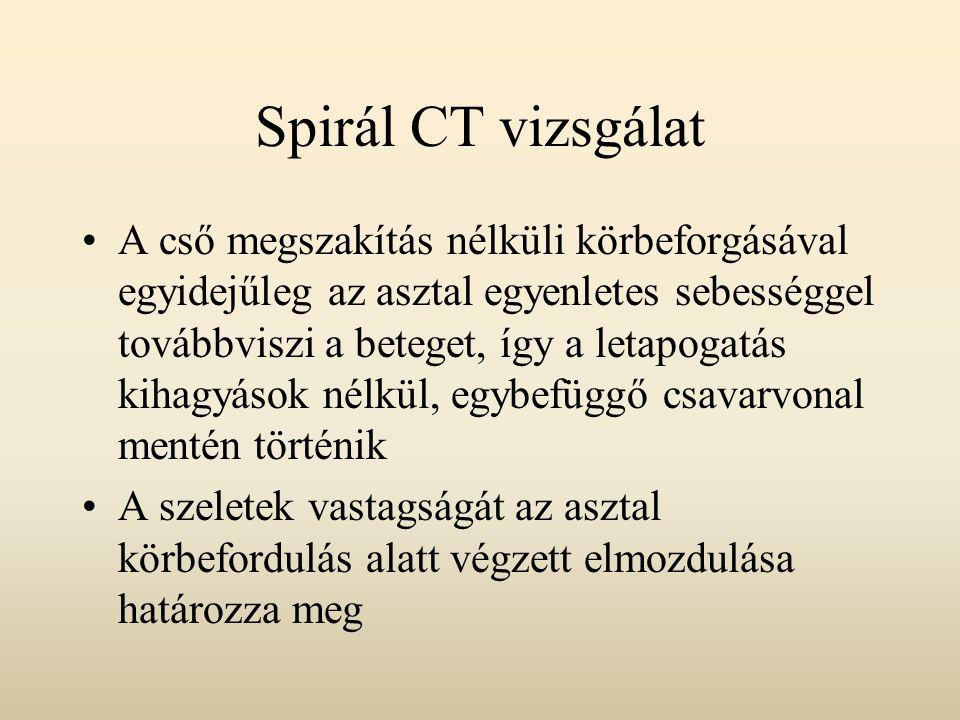 Spirál CT vizsgálat A cső megszakítás nélküli körbeforgásával egyidejűleg az asztal egyenletes sebességgel továbbviszi a beteget, így a letapogatás ki