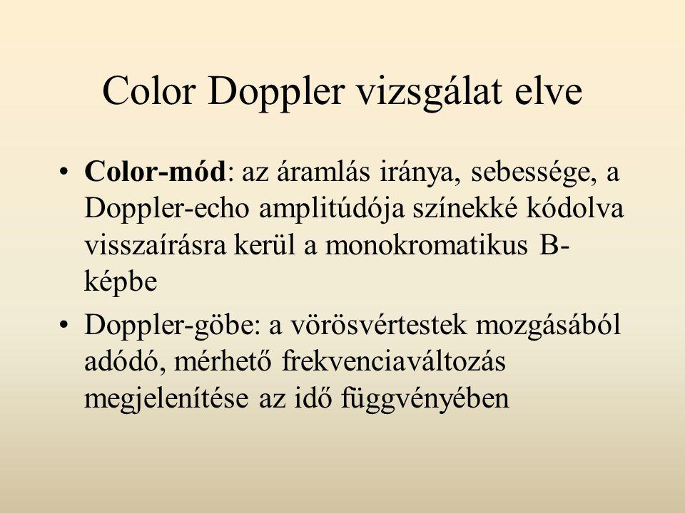 A vizsgálat elve Power-Doppler: a Doppler-echok amplitúdói kapnak színkódot (color amplitude imaging) A színkép az áramlás volumenével és nem a sebességével arányos Előnye: több információ nyerhető az alacsonyabb áramlási sebességű képletekről Hátránya: az áramlás irányáról és sebességéről nem ad információt