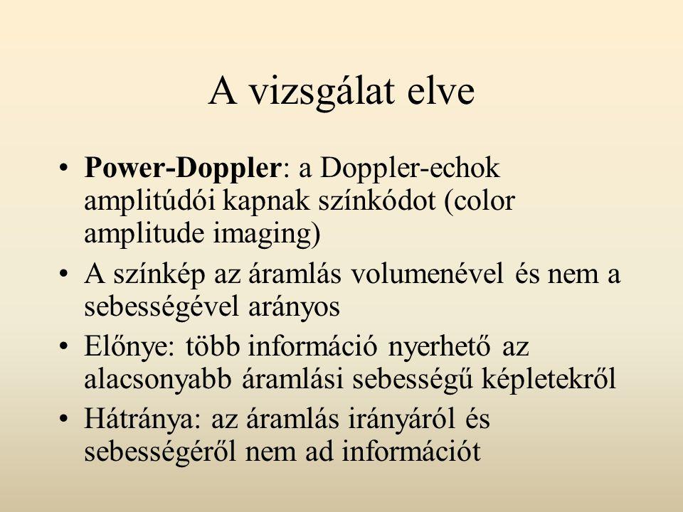 A vizsgálat elve Power-Doppler: a Doppler-echok amplitúdói kapnak színkódot (color amplitude imaging) A színkép az áramlás volumenével és nem a sebess