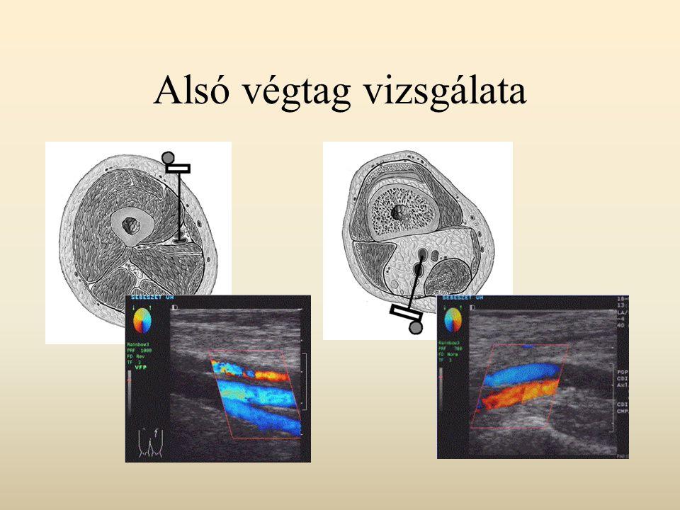 CT vizsgálat Legyező alakú, keskenyre szűkített sugárnyalábbal harántul pásztázzuk át a vizsgálandó testet, az onnan kilépő, módosult röntgensugárzást a csővel szemben elhelyezett detektorsorral fogjuk fel.