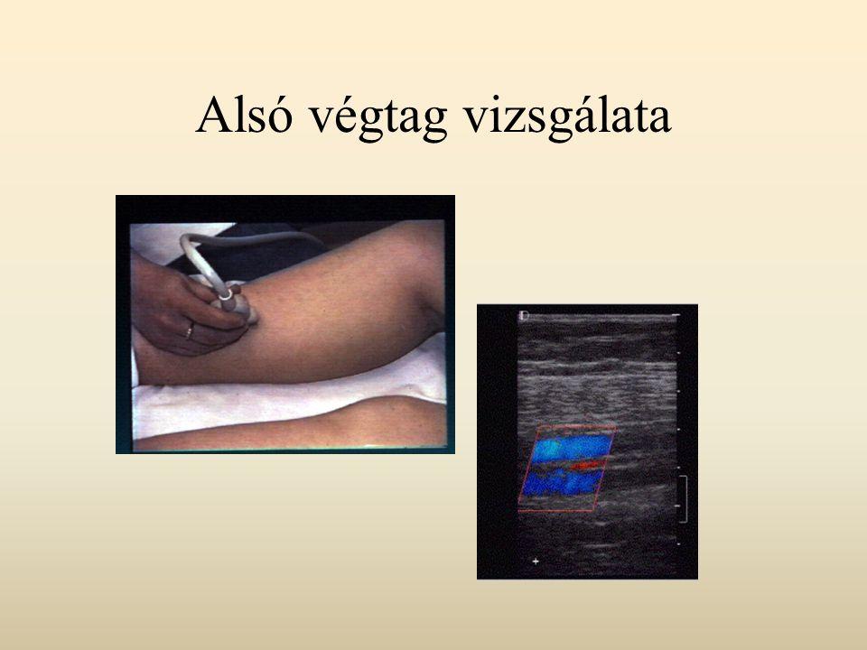 Vénás vizsgálatok Normál állapot: B-mód: sima, vékony érfal, a lumen echomentes, komprimálható