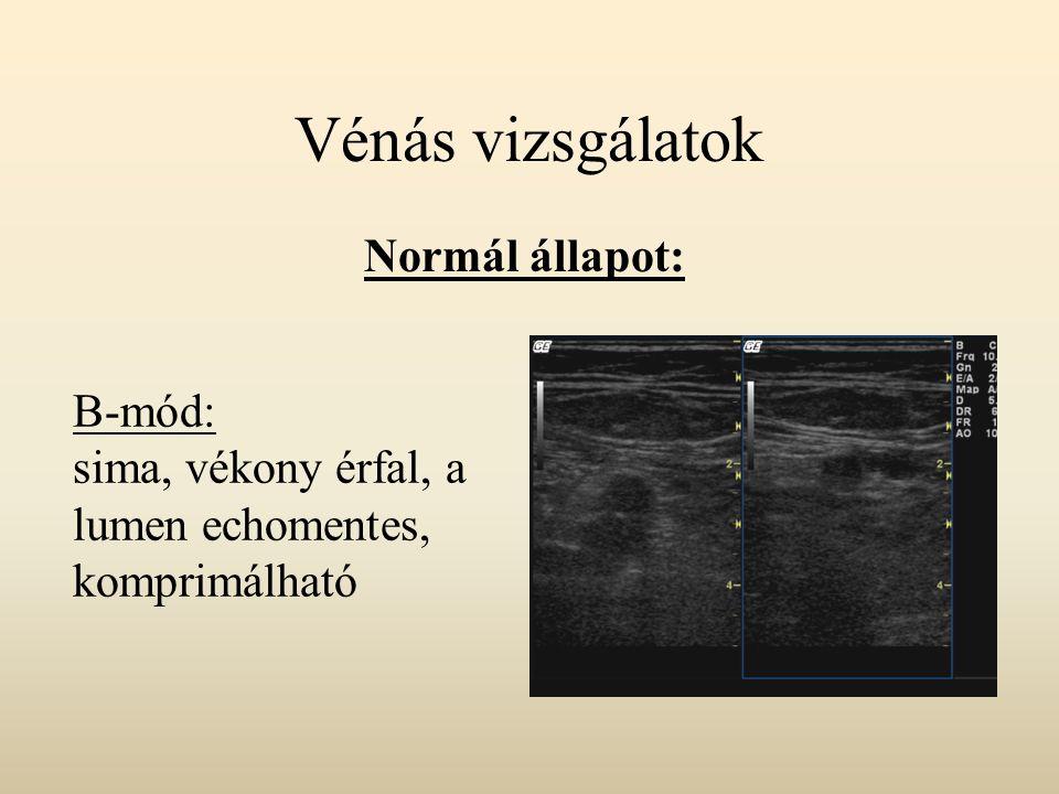 Budd-Chiari szindróma A vénás elvezetés a májvénák szintjében akadályozott Primer forma: endoluminalisan thrombus Secunder forma: szövetszaporult, vagy külső kompresszió okozta elzáródás