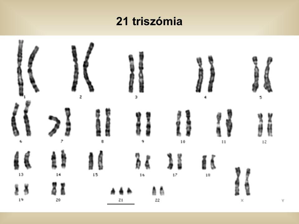 21 triszómia