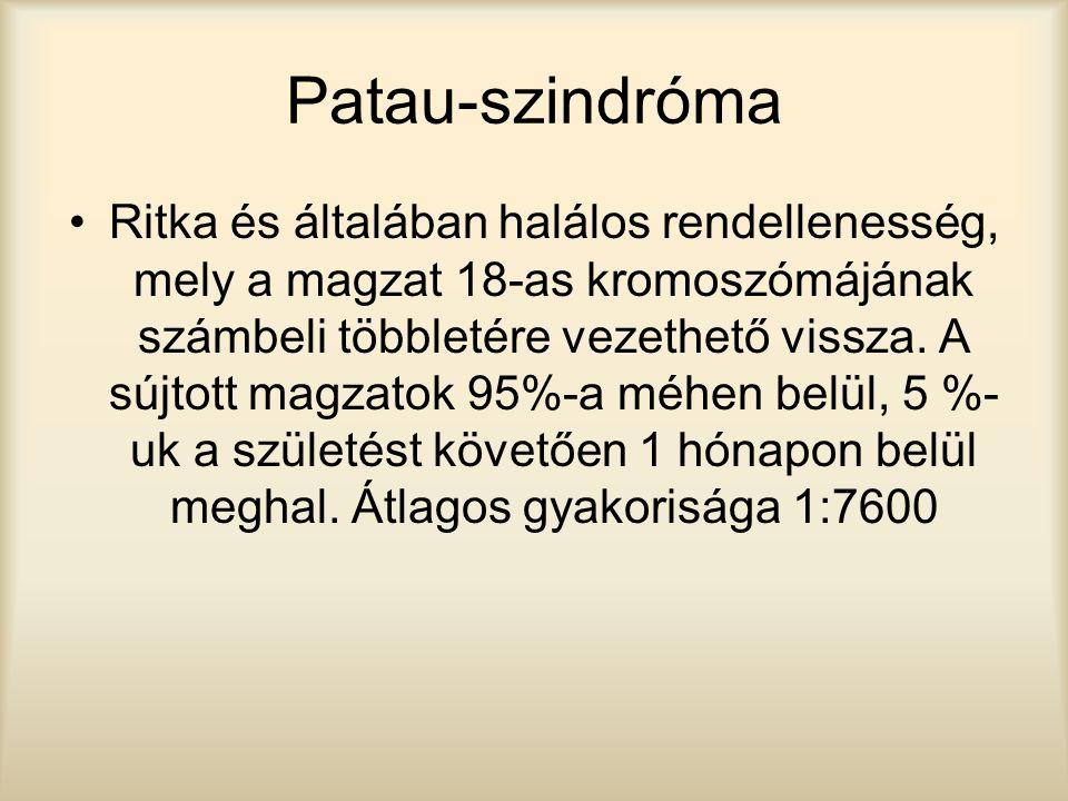 Patau-szindróma Ritka és általában halálos rendellenesség, mely a magzat 18-as kromoszómájának számbeli többletére vezethető vissza. A sújtott magzato