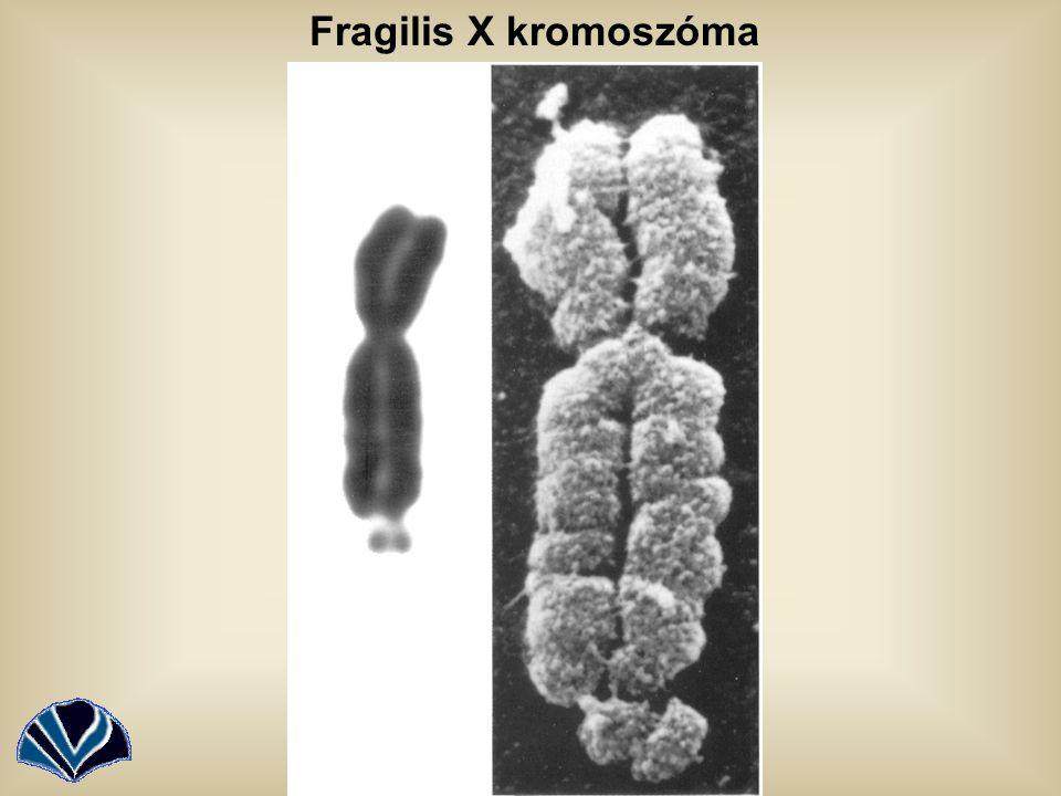 Fragilis X kromoszóma