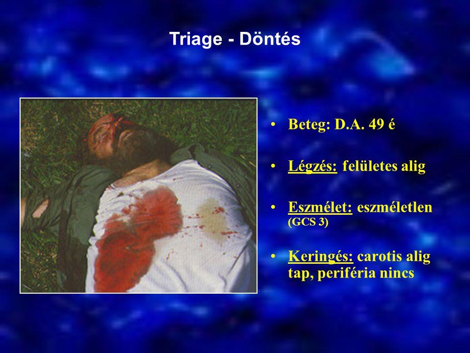 Beteg: D.A. 49 é Légzés: felületes alig Eszmélet: eszméletlen (GCS 3) Keringés: carotis alig tap, periféria nincs Triage - Döntés