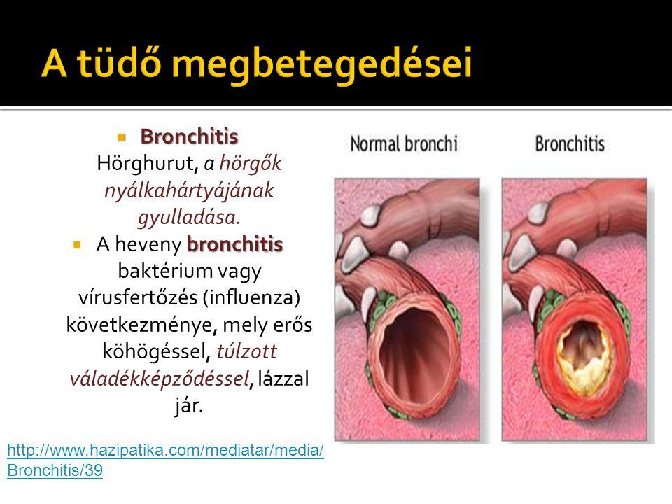  Bronchitis  Bronchitis Hörghurut, a hörgők nyálkahártyájának gyulladása. bronchitis  A heveny bronchitis baktérium vagy vírusfertőzés (influenza)