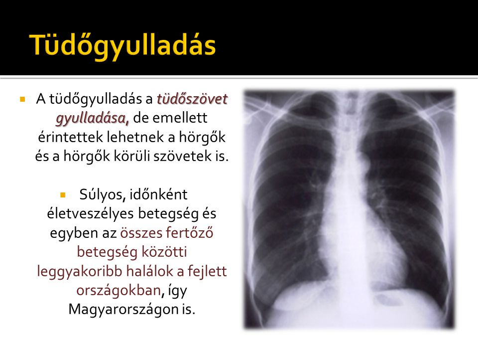 tüdőszövet gyulladása,  A tüdőgyulladás a tüdőszövet gyulladása, de emellett érintettek lehetnek a hörgők és a hörgők körüli szövetek is.  Súlyos, i