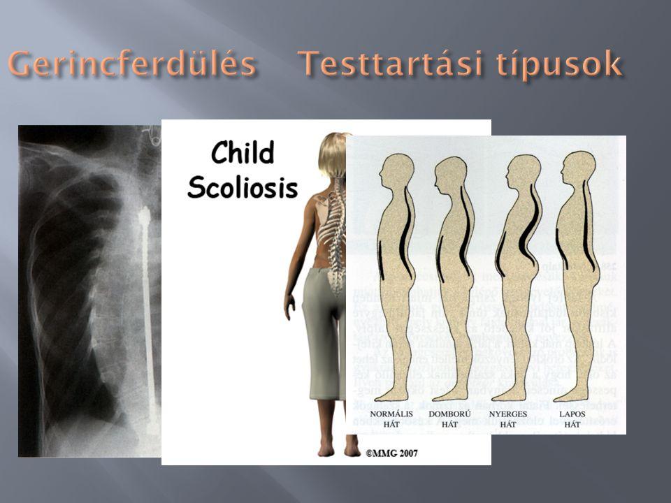 Testtartási problémák> gerincferdüléslúdtalp Veleszületett-szerzettláb boltozatának lelapulása