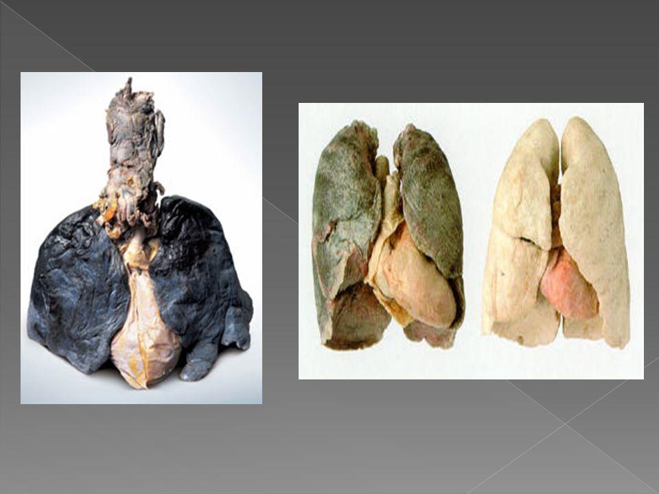  2.A dohányzás drága.