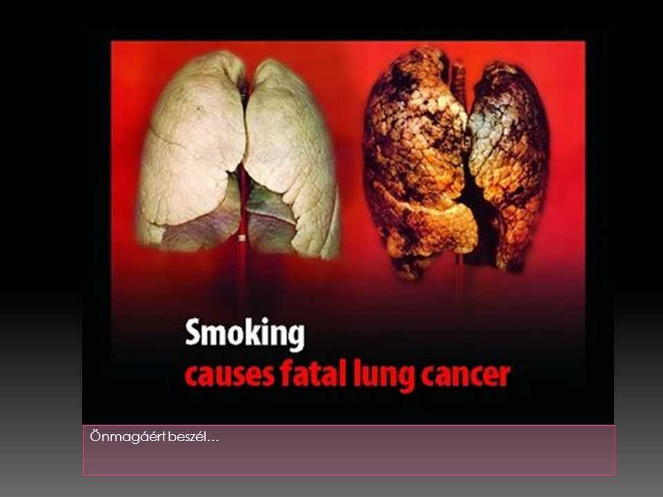  5.A cigaretta kábítószer!!.  Már az első cigaretta is veszélyes lehet.