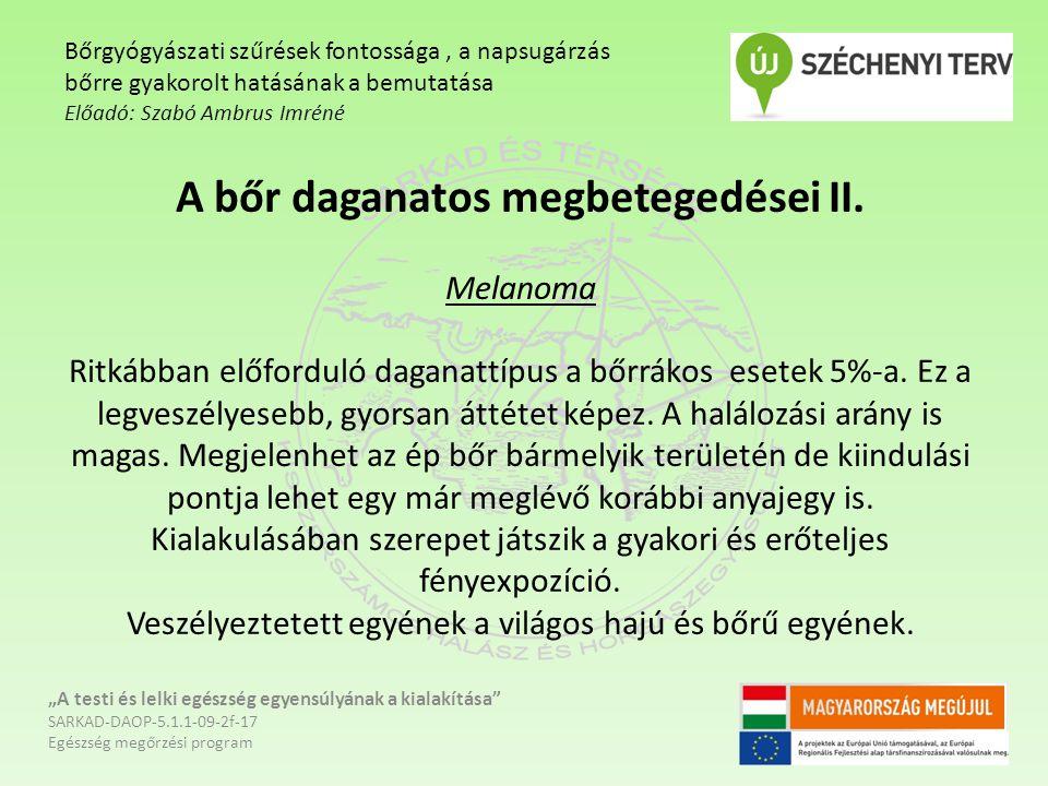 A bőr daganatos megbetegedései II.