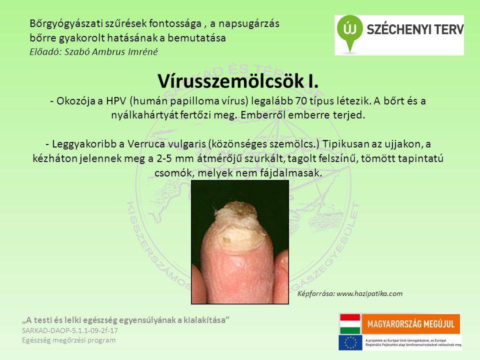 Vírusszemölcsök I. - Okozója a HPV (humán papilloma vírus) legalább 70 típus létezik. A bőrt és a nyálkahártyát fertőzi meg. Emberről emberre terjed.
