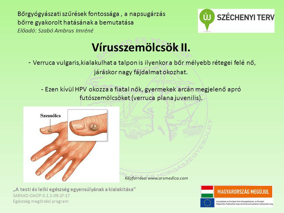 Vírusszemölcsök II. - Verruca vulgaris,kialakulhat a talpon is ilyenkor a bőr mélyebb rétegei felé nő, járáskor nagy fájdalmat okozhat. - Ezen kívül H