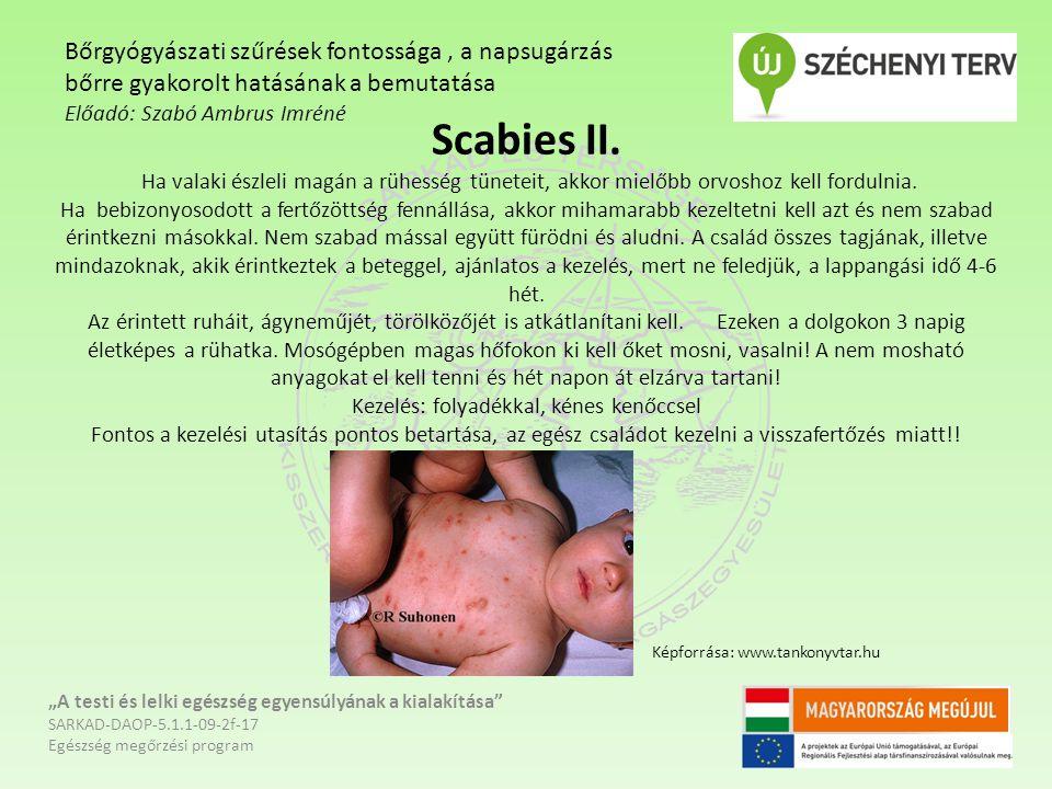 Scabies II. Ha valaki észleli magán a rühesség tüneteit, akkor mielőbb orvoshoz kell fordulnia. Ha bebizonyosodott a fertőzöttség fennállása, akkor mi