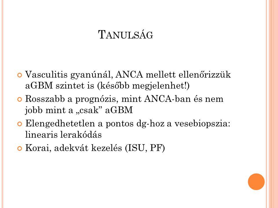 """T ANULSÁG Vasculitis gyanúnál, ANCA mellett ellenőrizzük aGBM szintet is (később megjelenhet!) Rosszabb a prognózis, mint ANCA-ban és nem jobb mint a """"csak aGBM Elengedhetetlen a pontos dg-hoz a vesebiopszia: linearis lerakódás Korai, adekvát kezelés (ISU, PF)"""